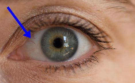 Uită-te bine în oglindă! Dacă ai ASTA la ochi mergi de urgenţă la medic!