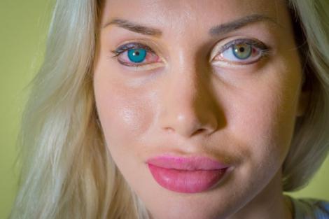 Un fotomodel și-a făcut implant ocular și și-a schimbat culoarea ochilor. A vrut să semene cu Frumoasa din Pădurea Adormită
