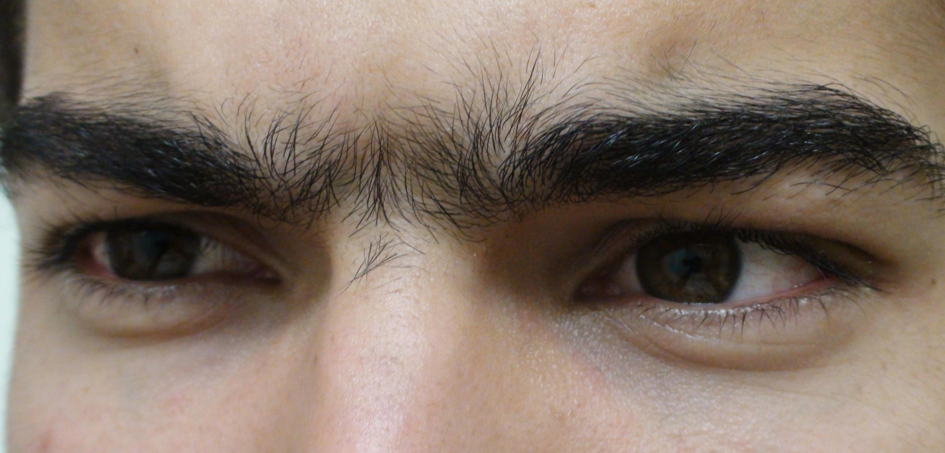 metoda de restaurare a batelor de vedere