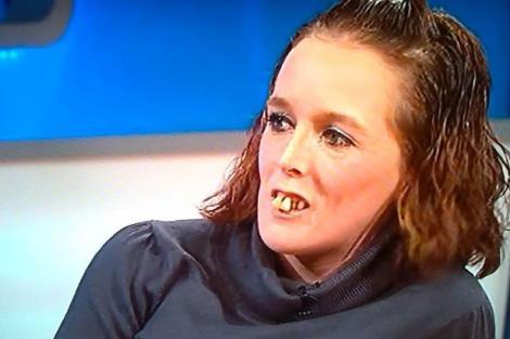 """Gemma Swift, femeia cu cei mai urâți dinți din lume, și-a """"reparat"""" dantura!"""