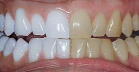 Amestecul minune care îți albește dinții instantaneu! Prietenii te vor întreba la ce tratament scump ai apelat