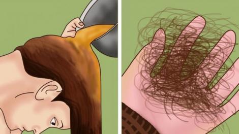 Oprește căderea părului în mod natural. Soluții simple și ușoare pentru un păr puternic.