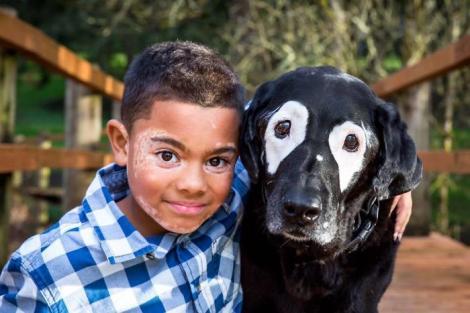 Prietenia ce rupe orice barieră!  Un băieţel şi un căţel uniţi de aceeaşi boală
