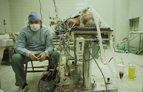 """Imaginea ce a înduioșat întreaga omenire. """"Am operat 23 de ore, non stop. I-am pus o inimă nouă!"""" Doctorul a murit. Pacientul trăiește și azi"""
