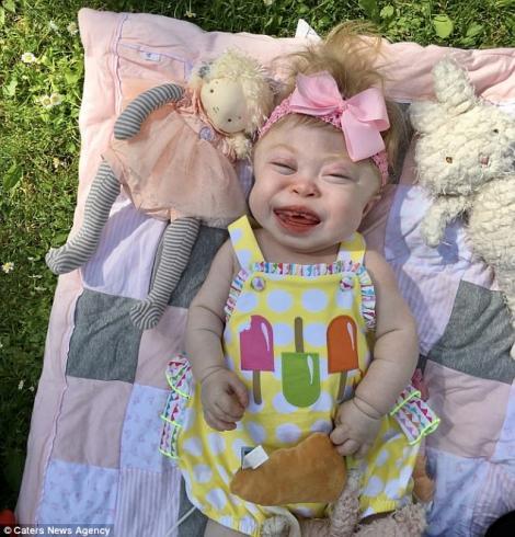 Minunile chiar există! Acest bebeluș și-a vindecat mama de cancer și, acum, mai are doar puțin timp de trăit. Imaginile îți smulg lacrimi