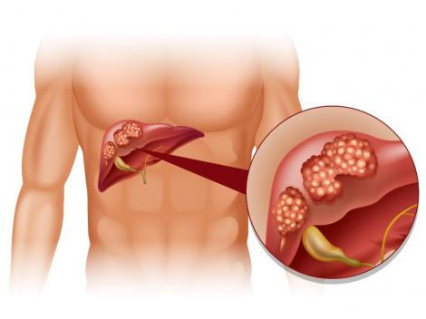 Simptome care îţi arată că e posibil să suferi de cancer la ficat! Cum poţi depista din timp crunta boală