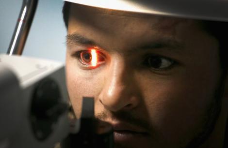 Caz medical ȘOCANT! Medicii au fost îngroziți când au văzut ochii pacientului! Ce au găsit