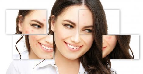 Îngrijirea tenului acneic - Tu știi ce produse este indicat să folosești?