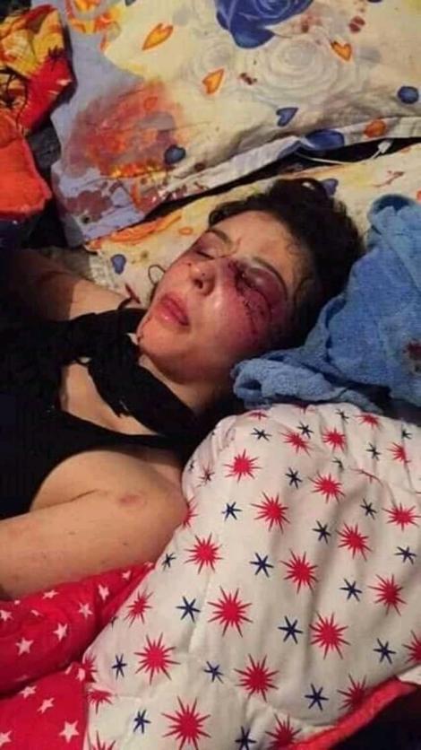 Petiție online. 20.000 de semnături pentru tânara bătută din Ploiești! Imaginile cu ea ghemuită pe un pat, plină de sânge, fac înconjurul internetului