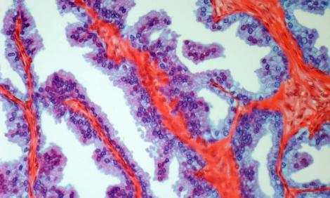 Cancerul de prostată, mai periculos decât cel la sân. Vești proaste pentru bărbați