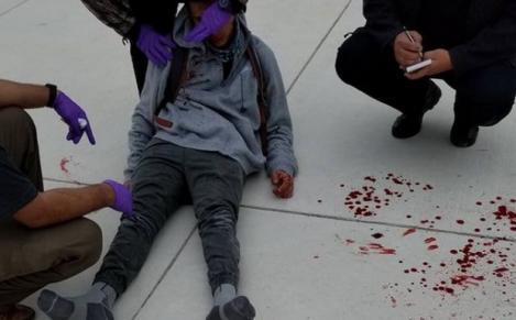 Imagini cu puternic impact emoțional! Elev bolnav, bătut cu sălbăticie de mai mulți colegi de școală