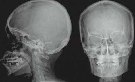 Radiografiile vor deveni istorie! Noua tehnologie va permite oricui să facă diferenţa între os, muşchi şi TUMORI canceroase