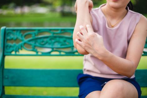 6 probleme frecvente cu pielea cu care o femeie se confruntă pe timpul verii