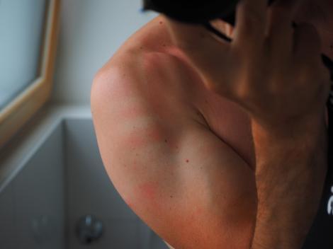 """Top 3 simptome """"tăcute"""" care prevestesc arsurile solare! Ai grijă la aceste semnale de alarmă!"""