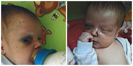 """Un bebeluș de o lună se zbate între viață și moarte după ce a fost bătut de mamă: """"L-a lăsat plin de sânge și s-a dus la întâlnire!"""""""