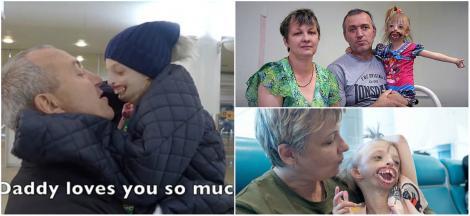 """După 11 ore pe masa de operație, Darina poate zâmbi pentru întâia oară: """"Înainte, ceilalți copii plângeau când îi vedeau chipul"""""""