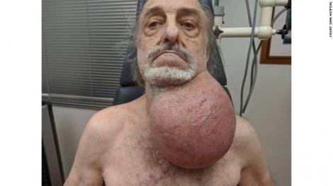 """Medicii au rămas fără cuvinte! Un bărbat a ajuns la spital cu o tumoare de dimensiunea unei mingi de fotbal. """"M-am pregătit pentru cel mai rău scenariu"""""""