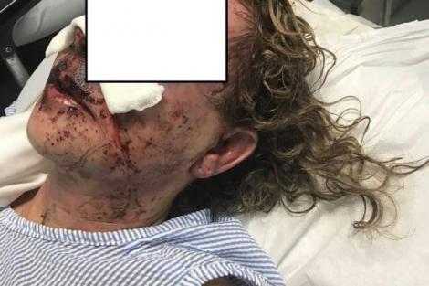 """Una dintre femeile bătute în Alexandria a rupt tăcerea. Primele declarații despre drama pe care a trăit-o: """"M-a lovit și am căzut lată!"""""""