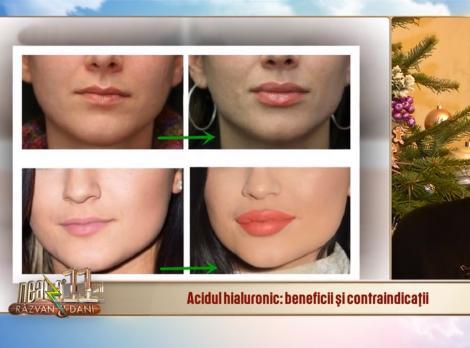 Tot ce trebuie să știm despre acidul hialuronic, substanța minune pentru piele