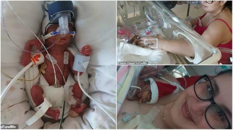 """Bebelușul minune! Amalia avea 411 grame când a venit pe lume, după ce mama ei a """"pierdut mai multe sarcini decât a suportat să numere"""""""