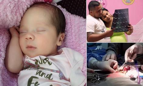 """Bebelușul care și-a """"înghițit"""" sora geamănă. O femeie a adus pe lume doi bebeluși, într-un singur corp"""