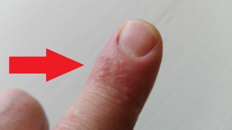 Ce înseamnă dacă ai aceste puncte pe piele? Semnul te trimite imediat la medic!