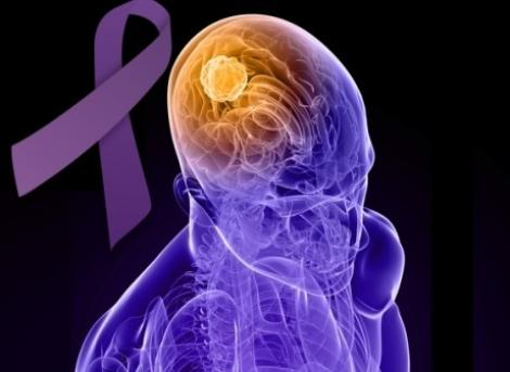 26 martie, Ziua Mondială a Epilepsiei. Tot ce trebuie să știi despre această boală