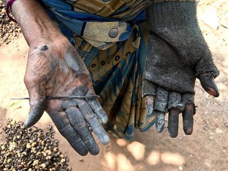 Cum arată mâinile unui curățător de caju! Arsurile sunt cumplite! Tu ai curăța un kilogram pentru un leu?
