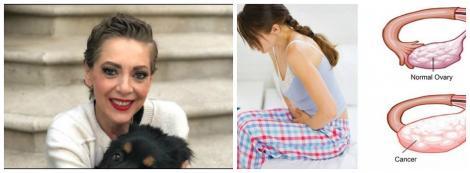 Ce este cancerul ovarian, boala care a rupus-o pe actrița Edith Gonzalez! Atenție mare la aceste simptome!