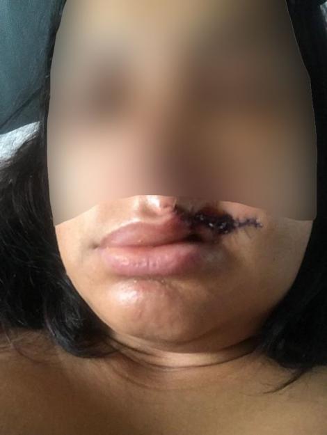 """A mușcat-o violent de buză și i-a spus: """"Eu sunt diavolul"""". Femeia agresată de un bărbat necunoscut în timpul unui carnaval va avea nevoie de operație pentru a se recupera"""