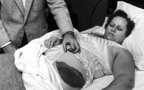 """Singura persoană lovită de meteorit! Fenomenul unic s-a îmtâmplat în casa femeii! """"Mi-a fost destinat mie, la urma urmei m-a lovit"""""""