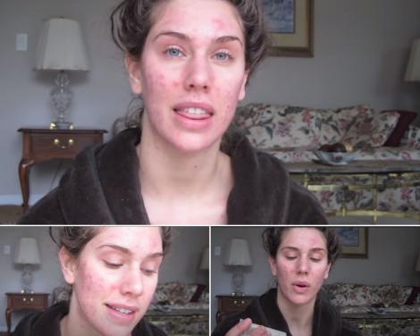 Cassandra Bankson, in urma cu 10 ani, cand suferea de acnee chistica