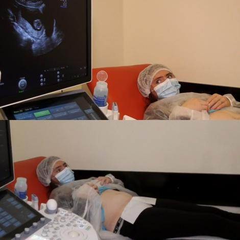 Vulpița, pe masa medicului ginecolog. Ce se întâmplă cu sarcina Veronicăi