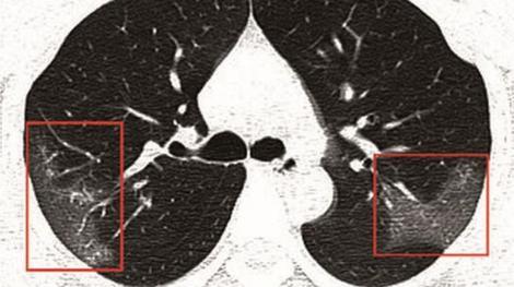 Ăștia sunt plămânii unui pacient infectat cu coronavirus! Radiografia arată efectele COVID-19 în organismul unei tinere de 33 de ani