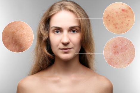 Trecem printr-o perioadă stresantă, iar efectele se văd pe pielea noastră! Ce putem face pentru a preveni consecințele stresului?
