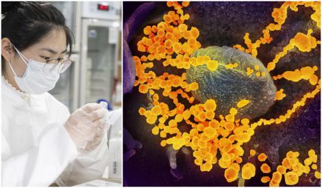 Institutul Flamand de Cercetare a anunțat descoperirea unui anticorp capabil să ucidă COVID-19. Ar putea împiedica noul coronavirus să infecteze celulele umane