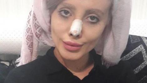Zombie Angelina este ținută în viaţă de un ventilator pulmonar după ce s-a infectat în închisoare