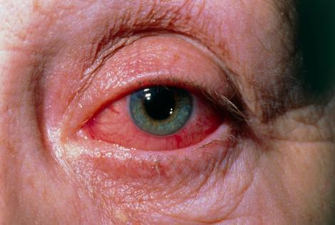 """Descoperire uluitoare în ochii celor infectați cu noul coronavirus. Medicii italieni au făcut totul public: """"Ce vedeți aici este la 21 de zile după apariția primelor simptome"""""""