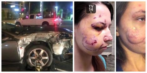 """Tânără desfigurată în urma unui accident rutier: """"Medicii m-au lăsat ore în șir să sângerez, având cioburi în față!"""" Cum arată acum, după o operație de reconstrucție facială"""""""
