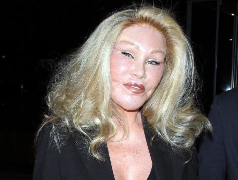 """Operațiile estetice i-au transformat fața în cea a unui animal. Drama prin care trece """"Femeia-Pisică"""" Jocelyn Wildenstein"""