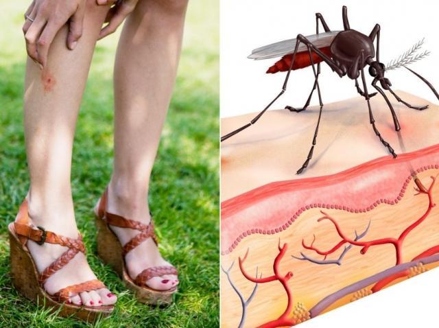 colaj cu picioarele unei femei cu ciupituri de insecte si un tantar care ciupeste pielea