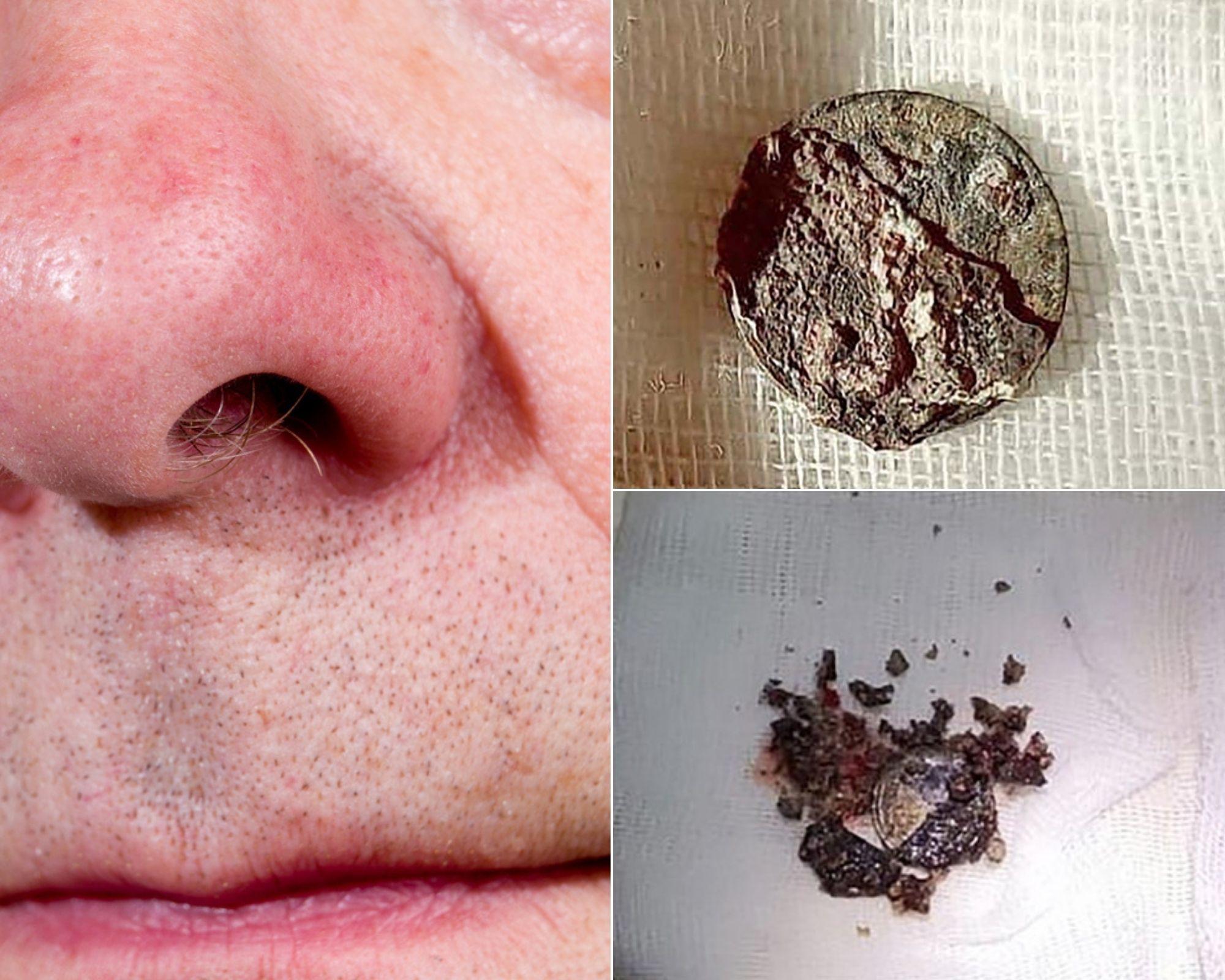 nasul si banul care a fost scos din nara dreapta a unui barbat dupa 53 de ani de la introducerea obiectului