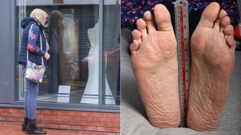 colaj de imagini cu picioarele juliei felton, femeia cu cele mai lungi talpi din lume