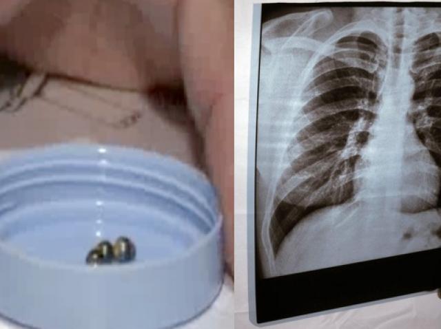 colaj foto: magneți ținuți între degete (stânga) și o ecografie medicală (dreapta)