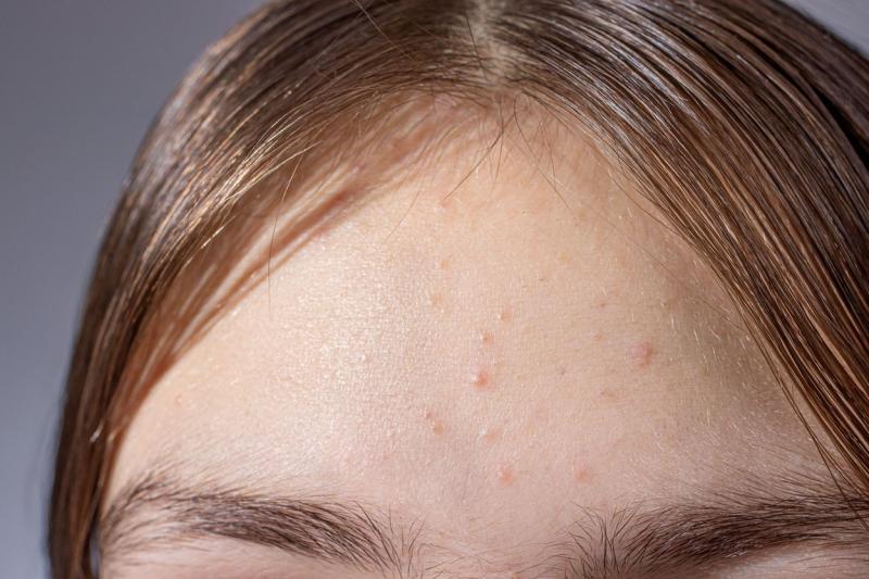 imagine ilustrativă cu puncte albe pe sub ochi (milia)