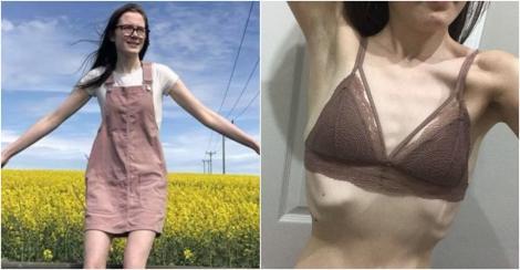 colaj abbie bonnyman, anorexie