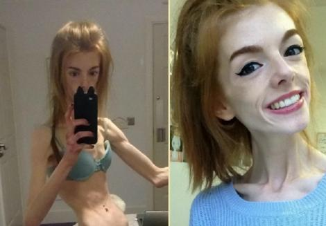 colaj foto: Annie Windley, poză în care își arată abdomenul, când avea 28 kilograme (stânga) și selfie cu ea (dreapta)