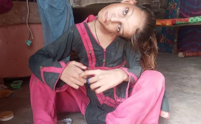 La 12 ani, gâtul ei e blocat la 90 de grade. Cum a ajuns să trăiască așa micuța Afsheen și de ce nu poate fi operată