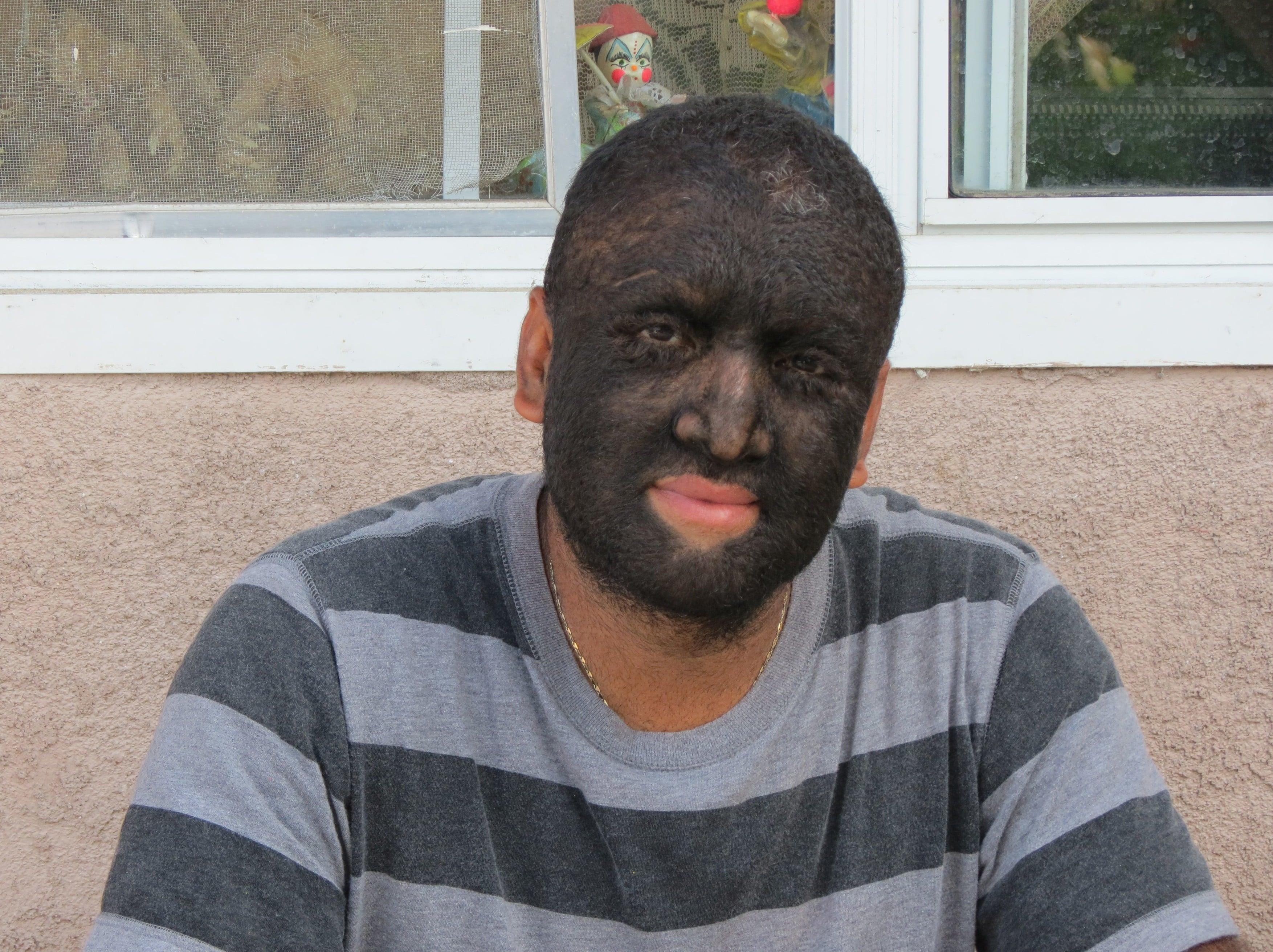 """Gabriel Ramos Gomez a fost numit """"Bărbatul-lup"""" pentru că are 95% din corp acoperit cu păr. De ce arată așa"""