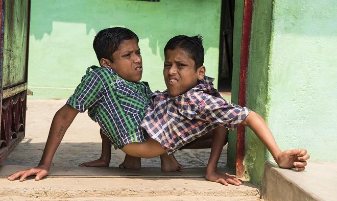 Ce s-a întâmplat cu gemenii siamezi Shivanath și Shivram Sahu, care au refuzat să fie despărțiți prin operație